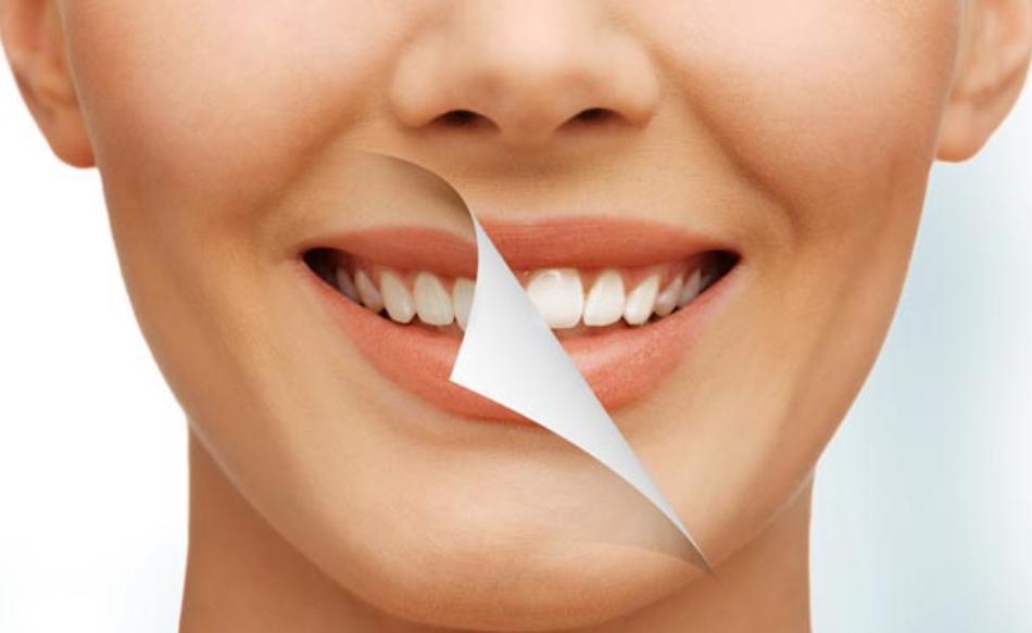 Sbiancamento dei denti: tutto quello che c'è da sapere